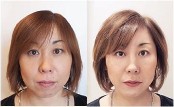 施術例:40代女性